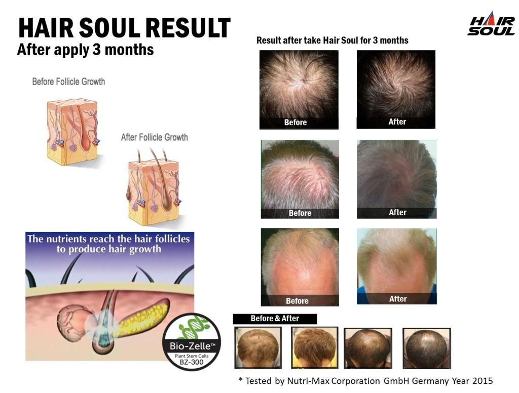 ผลการใช้ ยาปลูกผม Hair Soul ในการ รักษาผมร่วง ระยะ 3 เดือน