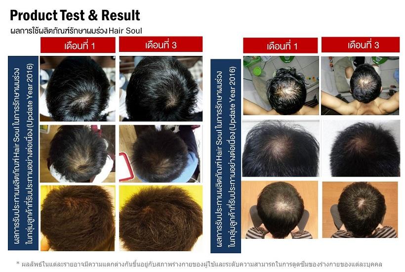 ผลการใช้ยาปลูกผม Hair Soul กับกลุ่มลูกค้าที่ใช้จริงที่เป็นคนไทย ในการ รักษาผมร่วง ระยะ 3 เดือน