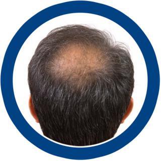 หัวล้านแบบไข่ดาว-ใช้อะไรดี, ลักษณะของหัวล้านในผู้ชาย, รูปแบบของหัวล้านในผู้ชาย, หัวล้านผู้ชาย
