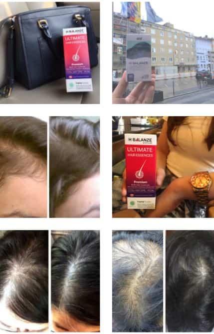 รีวิวผู้ใช้จริงยาปลูกผม Hair Soul - H Balanze Serum -- Mobile resize