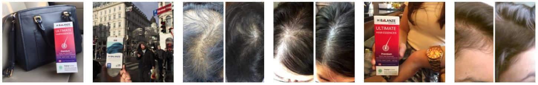 รีวิวผู้ใช้จริงยาปลูกผม Hair Soul - H Balanze Serum -- Resize